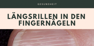 Längsrillen Fingernagel Infobox