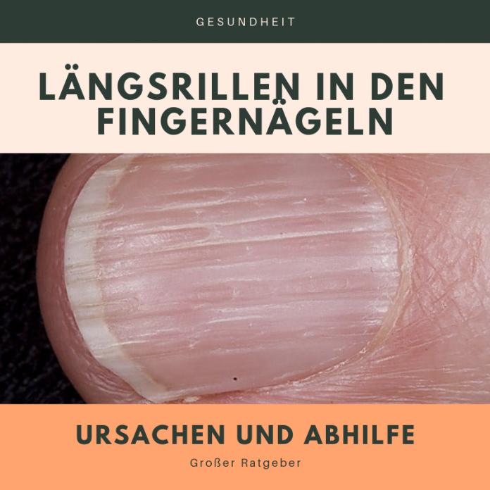 Längsrillen Fingernagel Infobox